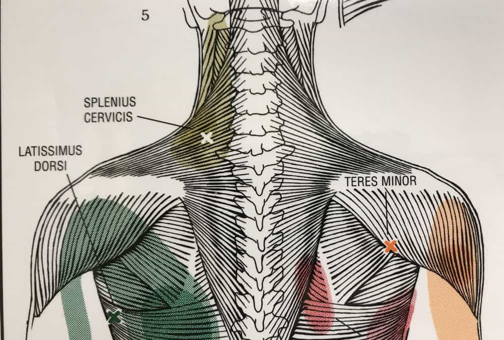 Upper Trapezius Pain Relief
