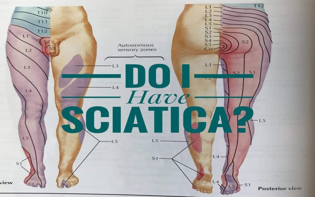 Cary Chiropractor for Sciatica