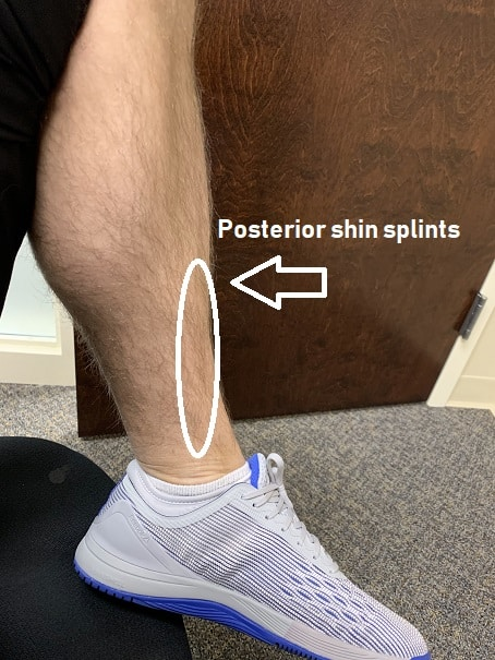 dry-needling-shin-splints-posterior