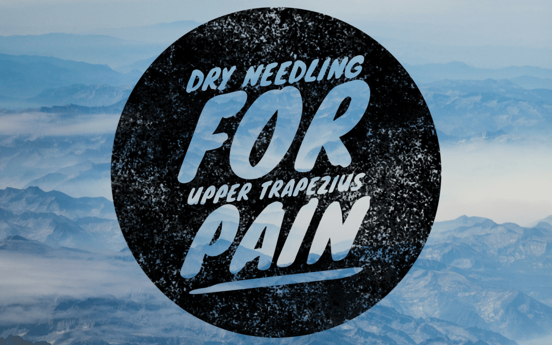 Dry Needling for Upper Trapezius Pain