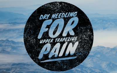 Dry Needling for Upper Trapezius Pain