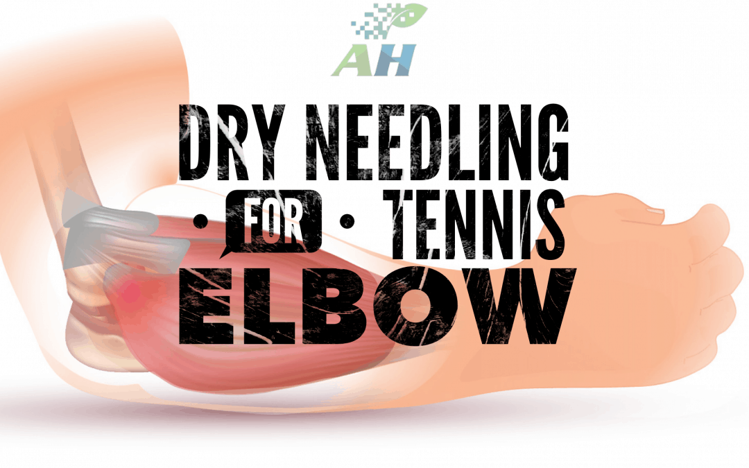 dry needling tennis elbow