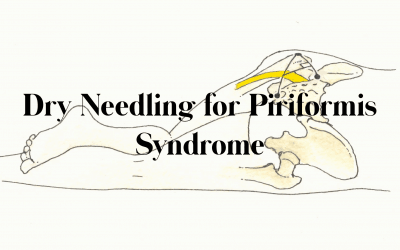 Dry Needling for Piriformis Syndrome