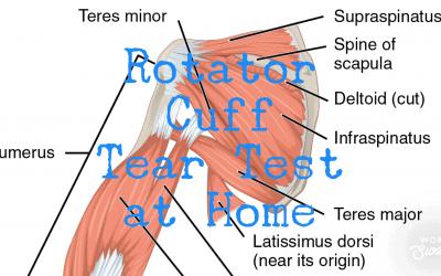 Rotator Cuff Tear Test At Home